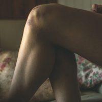 OKIEM OSTEOPATII – zwyrodnienie stawów